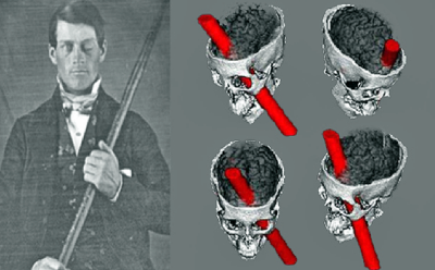 phineas-gage-e1445999795301